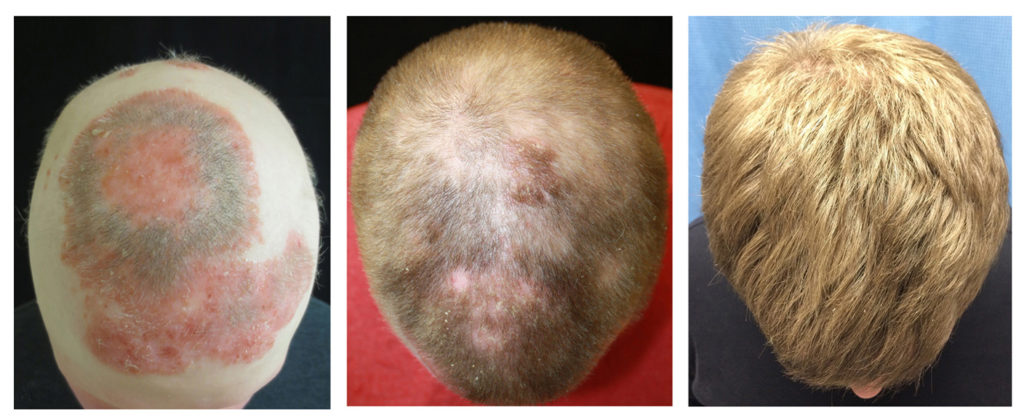 hair loss after radiation therapy