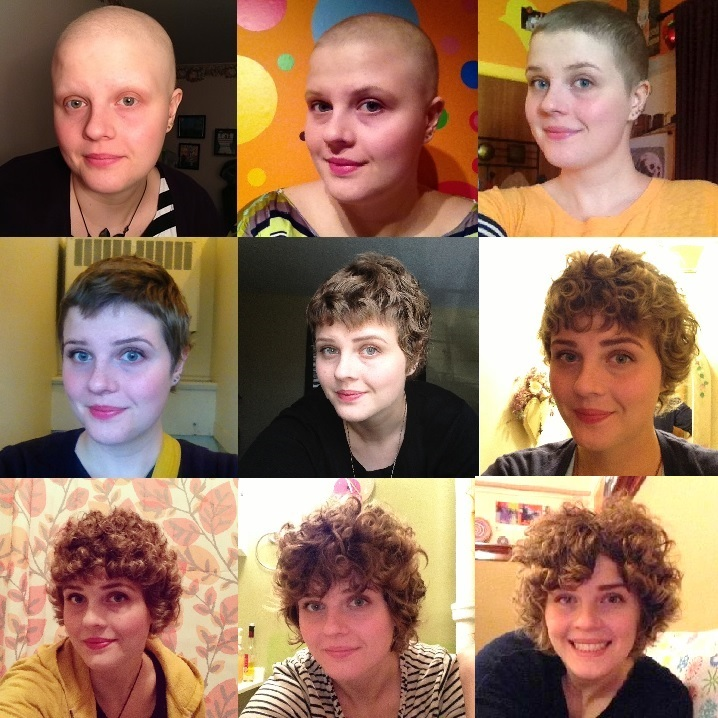hair restoration after chemotherapy